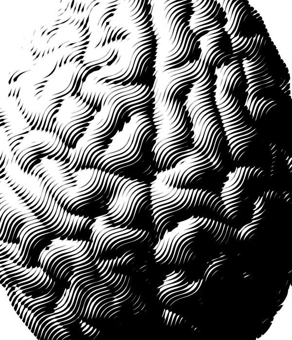 Brain Attract project