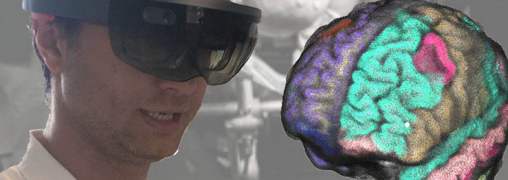 ATTRACT featured stories:  Mixed reality for brain functional and structural navigation during neurosurgery (MRbrainS)