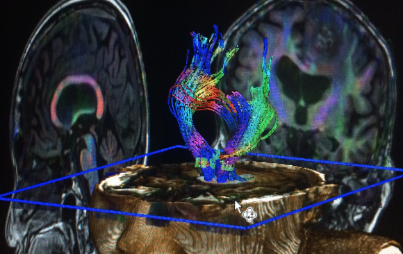 ATTRACT projects on neuroscience